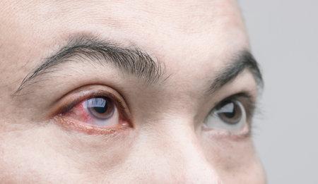 Eye irritation concept : Macro red eye of man,  conjunctivitis eye or after getting dust Stockfoto