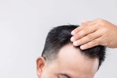 Portrait Asian man with worry feeling and touching on his head to show bald head or Glabrous problem. Studio shoot with copy space with grey background Stockfoto