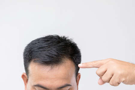 Portrait Asian man with worry feeling and touching on his head to show bald head or Glabrous problem. Studio shoot with copy space with grey background
