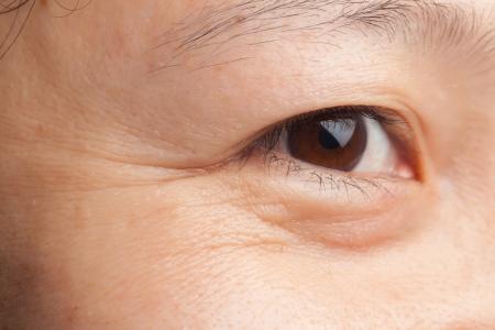 arrugas: Media de edad mujer arrugas primer