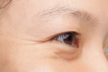 중년 여성의 얼굴 근접 촬영 주름