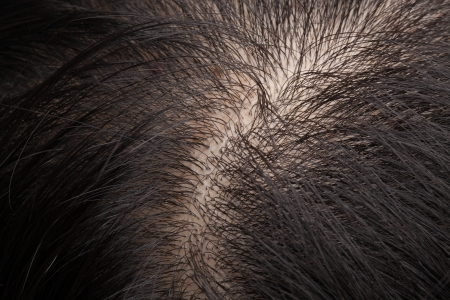 scalp: Closeup head with thinning hair and scalp