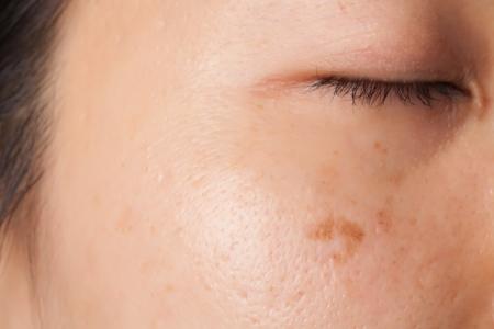 Frauengesicht mit Makel und Flecken