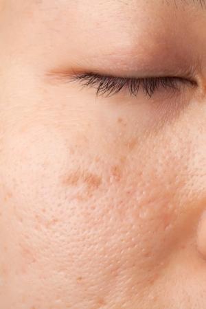 Vrouwen met een litteken en de huid probleem Stockfoto