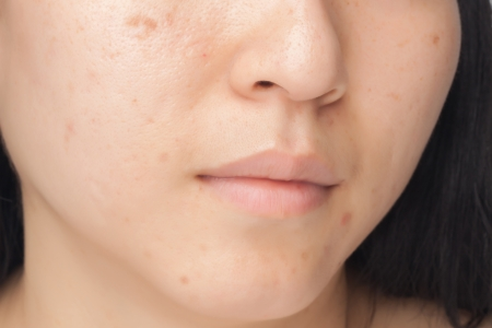 Woman with oily skin and acne scars photo
