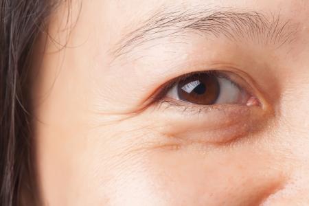 Rughe della donna e in sacchetto dell'occhio