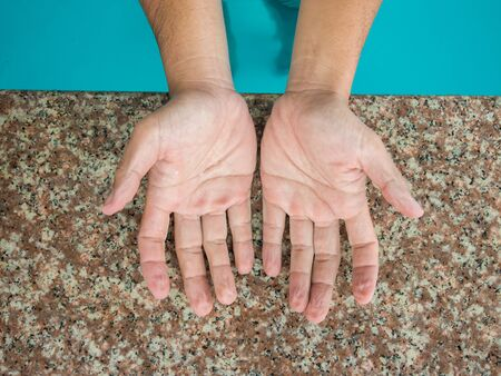 upturned: withered hands after swimming for a long time. Stock Photo