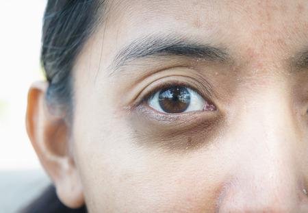 círculos oscuros alrededor de los ojos.