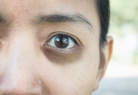 round eyes: Dark circles around eye. Stock Photo