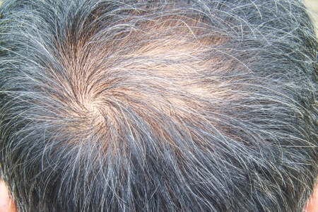 hair loss Reklamní fotografie