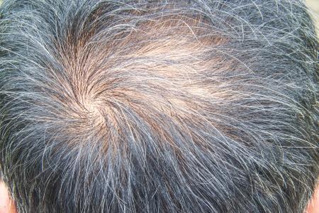 La p?rdida de cabello Foto de archivo - 21432651