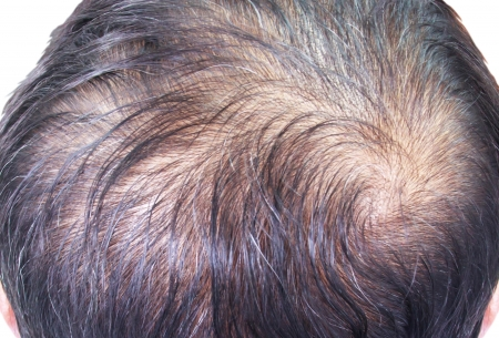 hair loss Reklamní fotografie - 21933101