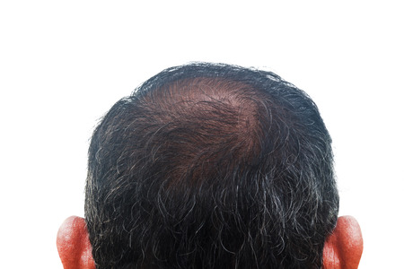 La pérdida de cabello y la regeneración, hombre asiático de 55 años Foto de archivo - 29041692