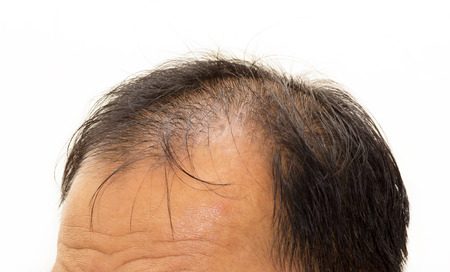 Male head with hair loss symptoms front side  스톡 콘텐츠