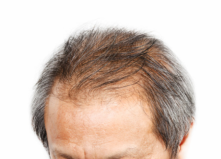 Male head with hair loss symptoms front side