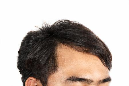 脱毛症状で男性の頭側をフロントします。 写真素材 - 33224689