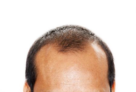 calvo: Hombre cabeza con síntomas de pérdida de cabello secundarios frente