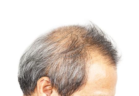 hombre flaco: Ca�da del cabello Foto de archivo
