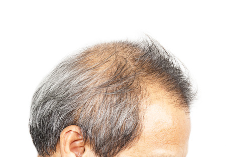 skinny: Hair loss Stock Photo