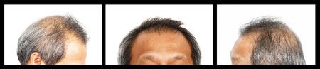 Haaruitval, mannelijke hoofd met haar verlies symptomen, set 3, vooraan, links, rechts Stockfoto