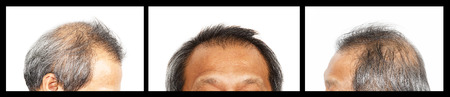 Hair loss , Male head with hair loss symptoms, set 3, front, left side, right side
