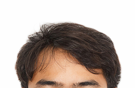 man hair: hair loss, Male head with hair loss symptoms front side Stock Photo