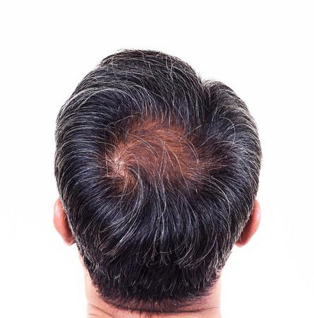 髪の損失と白髪、脱毛症状後ろ側で男性の頭。 写真素材 - 43671824