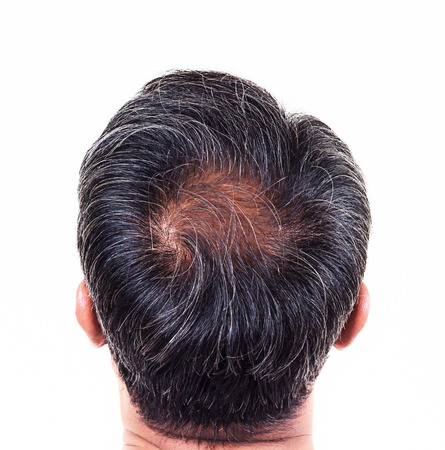 transplant: hair loss and grey hair, Male head with hair loss symptoms back side.