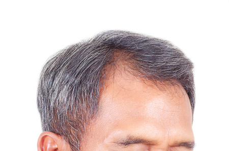hair loss: hair loss and grey hair, Male head with hair loss symptoms front side. Stock Photo