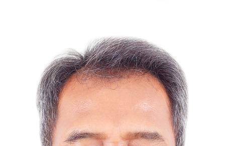 hair loss and grey hair, Male head with hair loss symptoms front side. Banque d'images