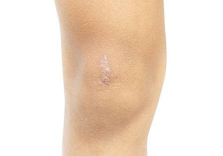 Scar on the boy's knee, Boy 11 years old  isolate on white background