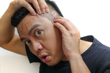Asian man is shocked when he saw the hair loss. Reklamní fotografie