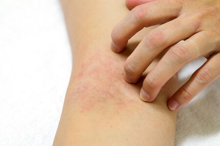 Women's hands are scratching allergy to red rash on white background Фото со стока