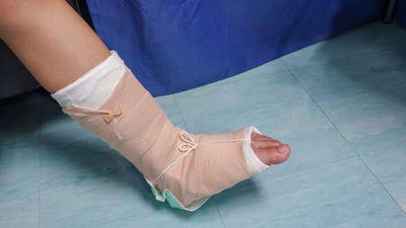 The legs of a woman to wear a splint to heal a bone injury.