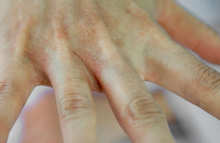 Women's hands that are dry because of allergies to chemicals, detergents, and hand sanitizer