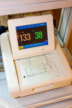caretaking: monitor for measuring of labor contractions