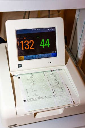 contractions: monitor for measuring of labor contractions