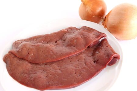 slices of liver with onions