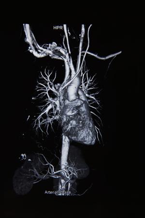 radiogram: Ct angiogram 3D show cardiac and vessels
