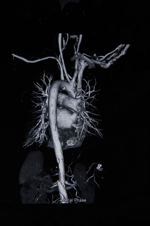 chest x ray: Ct angiogram 3D show cardiac and vessels