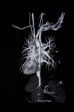 ct: Ct scan angiogram