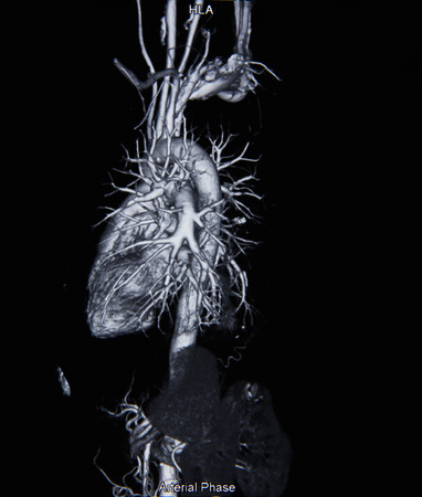 ventricle: Ct scan angiogram