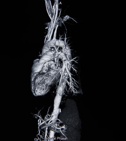 Ct scan angiogram