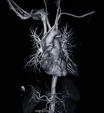 Ct scan angiogram