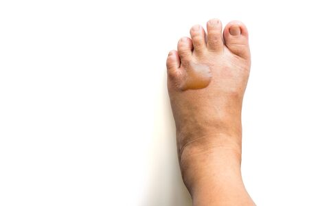 The scald on the foot skin caused by the boiling cooking oil Standard-Bild