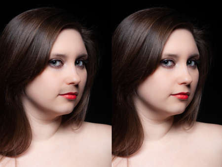 Woman mustache treatment concept. Collage portrait of young woman before and after mustache removing.
