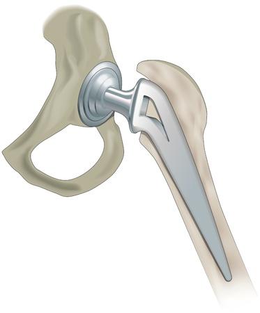 procedure: Protesi d'anca comune, articolazione artificiale Vettoriali