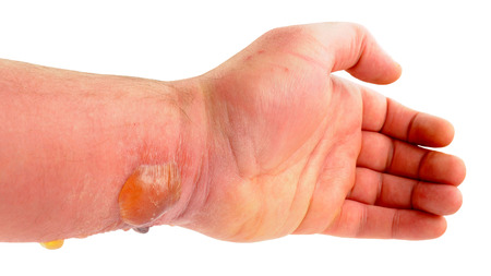 horse fly: Arm with blisters caused by a severe allergic reaction cause by a horse fly insect bite isolated on a white background