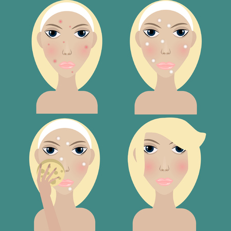 heath: Acne treatment, young blonde woman with problem skin, vector illustration of girl with acne