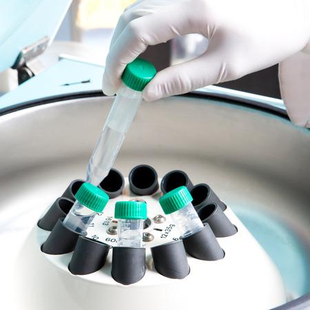 medical sample: Centrifuge